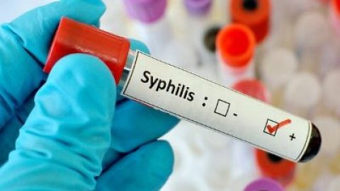 Syphilis- Dermatological Celebrity