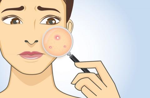 העור, ההורמון והפריון