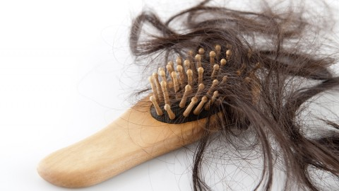 Some Facts About Hair Loss