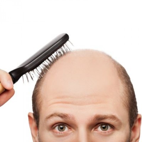 Male Pattern Baldness – Facts and Myths About This Issue